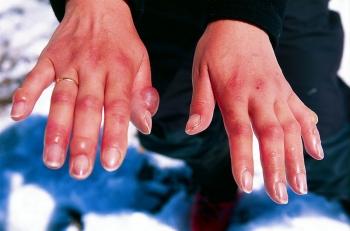 Отморожение рук второй степени