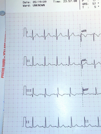Электрокардиограмма. Сердечный цикл