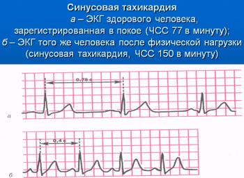 Синусовая такхикардия, ЭКГ