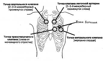 Стандартные положения стетоскопа для аускультации сердца