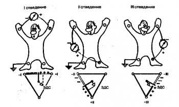 Формирование трех стандартных электрокардиографических отведений от конечностей. Внизу - треугольник Эйнтховена, каждая сторона которого является осью того или иного стандартного отведения