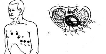 Места наложения 6 грудных электродов (а) и расположение осей грудных отведений в горизонтальной плоскости (б)