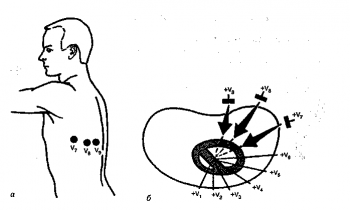 Расположение электродов (а) и осей (б) дополнительных грудных отведений V7 – V9