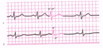 ЭКГ при экстрасистолии из АВ - соединения. а - экстрасистолический импульс одновременно достигает предсердий и желудочков. Комплекс QRS и зубцы Р сливаются друг с другом (зубцы Р экстрасистолы не видно). б - экстра - истолический импульс вначале достигает желудочков, а затем предсердий, отрицательный зубец Р расположен после желудочкового комплекса QRS