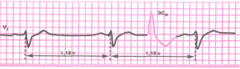 ЭКГ при вставочной (интерполированной) желудочковой экстрасистоле (ЭСЖ)