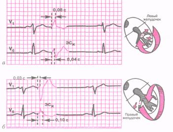 ЭКГ при левожелудочковой (а) и правожелудочковой (б) экстрасистолах
