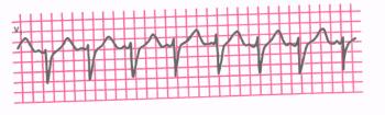 ЭКГ. Пароксизмальная предсердная тахикардия (ЧСС 150 в мин.)