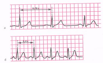 Синусовая тахикардия. а - ЭКГ здорового человека, зарегистрированная в покое (ЧСС 77 в минуту); б - ЭКГ того же человека после физической нагрузки (синусовая тахикардия, ЧСС 150 в минуту).