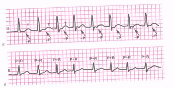 Пароксизмальная тахикардия из АВ-соединения. а - атриовентрикулярная (узловая) тахикардия с предшествующим возбуждением желудочков и последующим ретроградным возбуждением предсердий (отрицательный зубец Р располагается позади комплекса QRS); б - атриовентрикулярная (узловая) тахикардия с одновременным возбуждением предсердий и желудочков (зубец Р сливается с комплексом QRS).