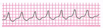 Пароксизмальная желудочковая тахикардия (ЧСС 150 в мин)