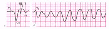 ЭКГ больного острым инфарктом миокарда (а), осложненным трепетанием (б)