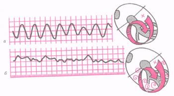 ЭКГ при трепетании (а) и мерцании (фибрилляции) желудочков (б).