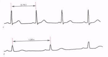 Синусовая брадикардия. а - ЭКГ здорового человека (ЧСС 77 в минуту); б - ЭКГ здорового спортсмена, зарегистрированная в покое (синусовая брадикардия)