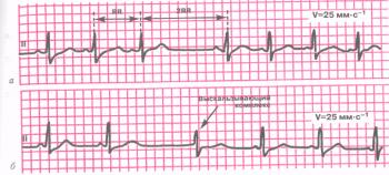 ЭКГ при синоатриальной блокаде. а - выпадение отдельных комплексов Р - QRST; б - во время длинных пауз на фоне выпадения комплексов; б - QRST появляются отдельные медленные выскальзывающие комплексы из АВ - соединения с одновременным возбуждением предсердий и желудочков
