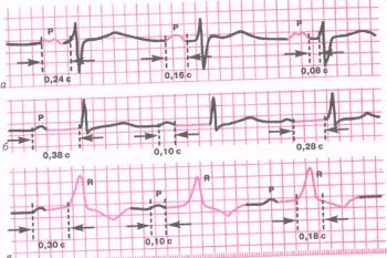 ЭКГ при атриовентрикулярной блокаде I степени. а - предсердная форма блокады; б - узловая форма; в - дистальная (трехпучковая) блокада