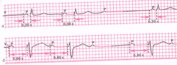 ЭКГ при атриовентрикулярной блокаде II степени (3:2). а - тип I Мобитца (с периодами Самойлова - Венкебаха); б - тип II Мобитца