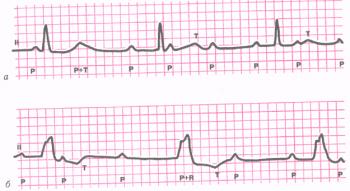 ЭКГ при полной атриовентрикулярной блокаде III степени. а - проксимальная форма АВ - блокады; б - дистальная форма блокады