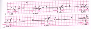 ЭКГ при атриовентрикулярной блокаде II степени. а - атриовентрикулярная блокада II степени типа 2:1; б - прогрессирующая атриовентрикулярная блокада II степени