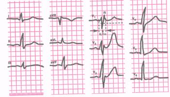 ЭКГ при неполной блокаде правой ножки пучка Гиса. Комплекс QRS в отведениях V1 и V2 имеет вид rSR'. Длительность QRS 0,11 сек