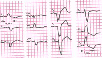 ЭКГ при полной блокаде левой ножки пучка Гиса. Длительность QRS 0,16 сек. Электрическая ось сердца смещена влево (угол a = - 60°). В отведениях V5 61, aVL уширенные и деформированные желудочковые комплексы типа R с расщепленной вершиной. В отведениях V( 2 - комплексы типа QS и rS. В отведениях V5 и V6 - депрессия сегмента RS - Т ниже изолинии и отрицательный зубец Т
