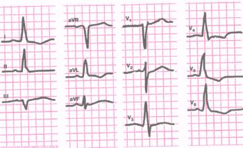 ЭКГ при неполной блокаде левой ножки пучка Гиса. Длительность QRS 0,11 сек. Горизонтальное положение электрической оси сердца (угол а = 0°). В отведениях V5 и V6 - высокий деформированный зубец R, в отведениях V1 и V2 - глубокий зубец S