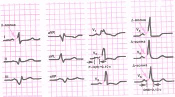 ЭКГ при синдроме WPW. Положительная Д -волна в отведениях I, V1 - V4 и отрицательная D-волна в отведениях II, III и aVF, укорочение интервала Р - Q R и увеличение продолжительности QRS
