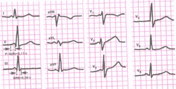 ЭКГ больного с синдромом CLC. Интервал P - Q® укорочен (0,11 сек.), комплекс QRS нормальной продолжительности (0,08 сек.), не деформирован