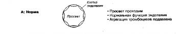 Патофизиология синдромов стенокардии. А. Нормальные коронарные артерии полностью проходимы; эндотелий функционирует нормально