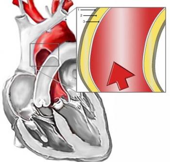 Строение аорты: 1. эластическая мембрана (внешняя оболочка или Tunica externa, 2. мышечная оболочка (Tunica media), 3. внутренняя оболочка (Tunica intima)