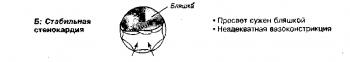 Патофизиология синдромов стенокардии. Б. При стабильной стенокардии атеросклеротическая бляшка и неадекватная вазоконстрикция (вследствие дисфункции эндотелия) уменьшают диаметр просвета и коронарный кровоток