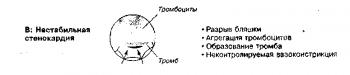 Патофизиология синдромов стенокардии. В. При нестабильной стенокардии повреждение бляшки (например, разрыв) запускает агрегацию тромбоцитов, образование тромба и вазоконстрикцию, которые в совокупности снижают коронарный кровоток