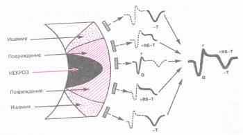 ЭКГ изменяется в зависимости от времени, прошедшего от начала формирования инфаркта миокарда