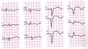 ЭКГ при распространенном переднем трансмуральном инфаркте миокарда (переднеперегородочной области, верхушки и переднебоковой стенки левого желудочка.)
