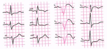 ЭКГ при переднеперегородочном и верхушечном инфаркте миокарда