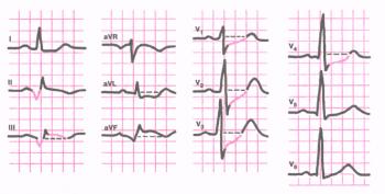 ЭКГ при заднедиафрагмальном  (нижнем) инфаркте миокарда