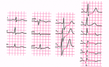 ЭКГ при заднебазальном инфаркте миокарда