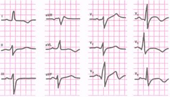 ЭКГ при мелкоочаговом инфаркте миокарда в области верхушки и переднебоковой стенки левого желудочка