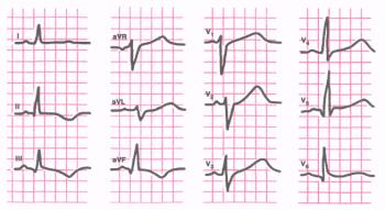 ЭКГ при остром мелкоочаговом инфаркте миокарда в области заднедиафрагмальной (нижней) стенки левого желудка