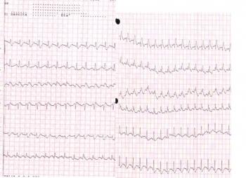ЭКГ при тромбоэмболии лёгочной артерии