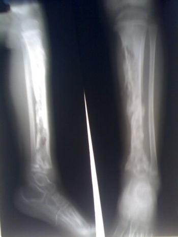 Рентгенограмма при остеомиелите