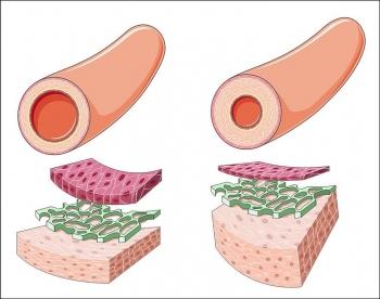 Утолщение сосудистой стенки при артериальной гипертензии