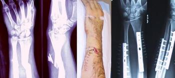Внешний вид и соответствующее рентгеновское изображение перелома