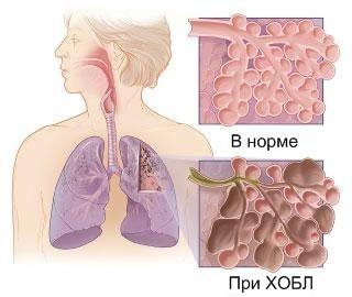 Схематичное изображение ткани легких в норме и при ХОБЛ