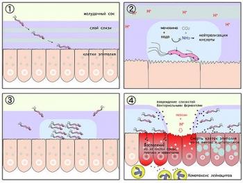 Схематическое изображение патогенеза язвы желудка: 1. H. pylori проникает через слой слизи в желудке хозяина и прикрепляется к эпителиальным клеткам; 2. Бактерии катализируют превращение мочевины в аммиак, нейтрализуя кислотную среду желудка; 3. Размножаются, мигрируют и образуют инфекционный центр; 4. В результате разрушения слизистой, воспаления и смерти клеток эпителия образуются изьязвления желудка
