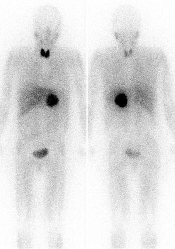 Феохромоцитома (сцинтиграфия)
