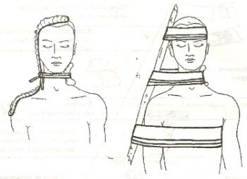 Наложение жгута на шею при ранении сосудистого пучка
