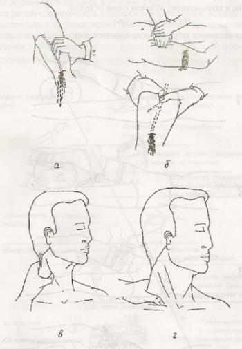 Методика пальцевого прижатия поврежденной артерии на протяжении сосуда