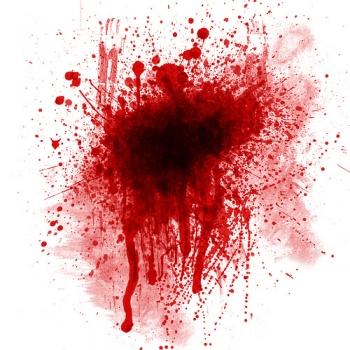 Окончательная остановка кровотечений. Photo-art