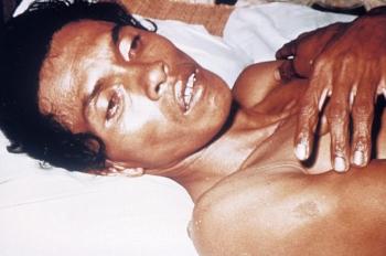 Человек с тяжелой формой обезвоживания из-за холеры. Обратите внимание на запавшие глаза и снижение тургора кожи