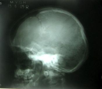Перелом черепа